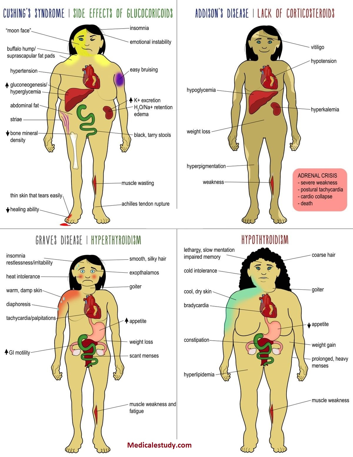 Common Endocrine Disorders Cheat Sheet