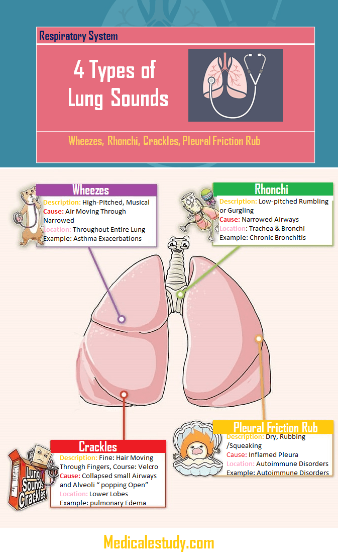 4 Types of Lung Sounds - Medical eStudy