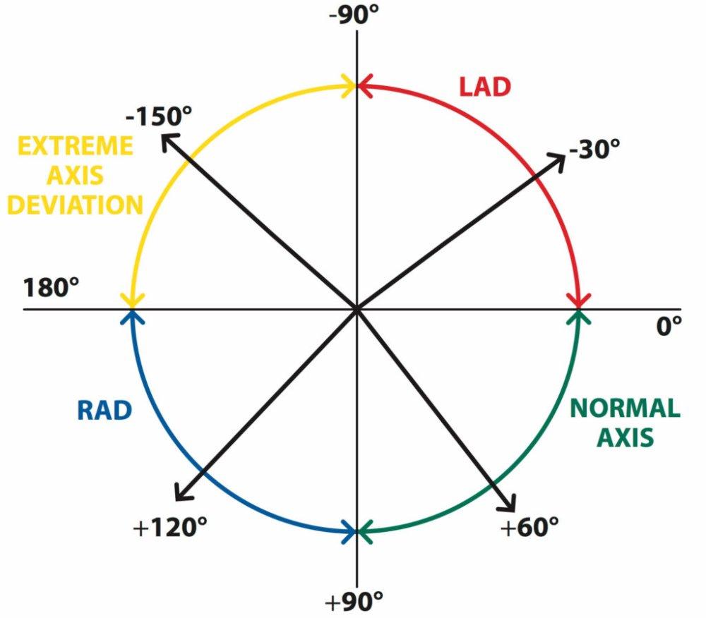 medium resolution of the axis of the ecg medical exam prep