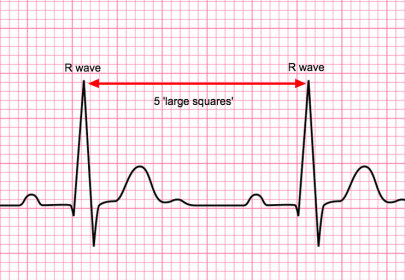 Image result for r-r interval ecg