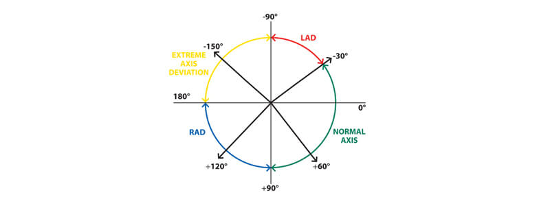 The Basics of ECG Interpretation (Part 2