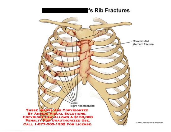 Rib Fractures