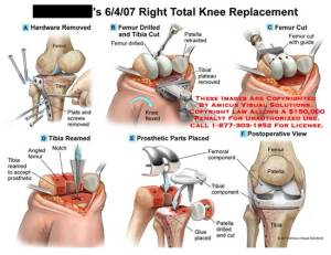 Right Total Knee Replacement