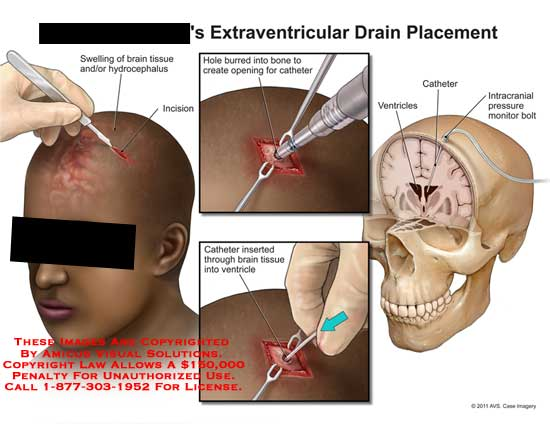 Extraventricular Drain Placement