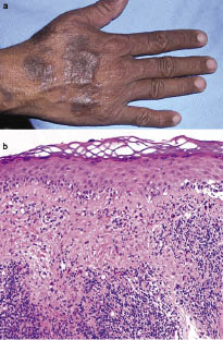 Acta Dermato Venereologica Cutaneous Drug Eruption With