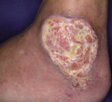 Recurrence of Hydroxyureainduced Leg Ulcer After