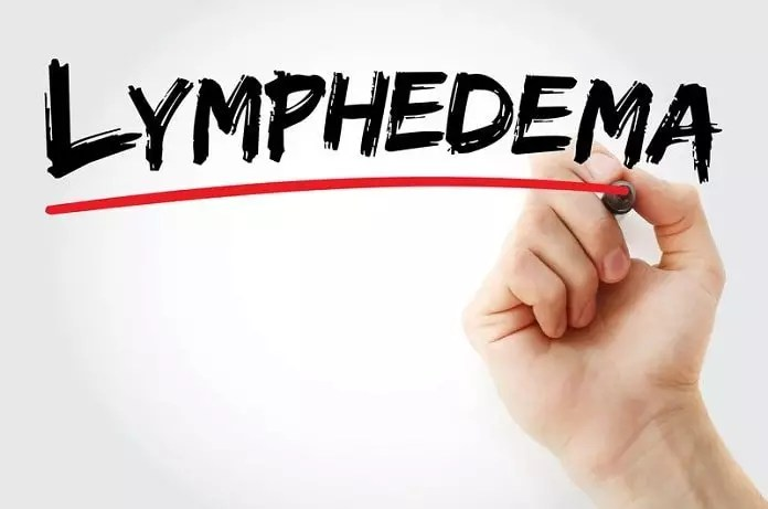 treat lymphedema