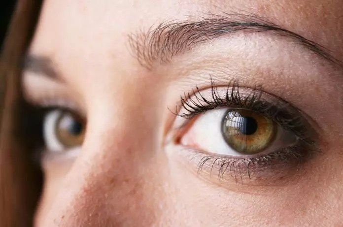 Psoriasis Severity Linked To Increased Risk Of Uveitis Medical
