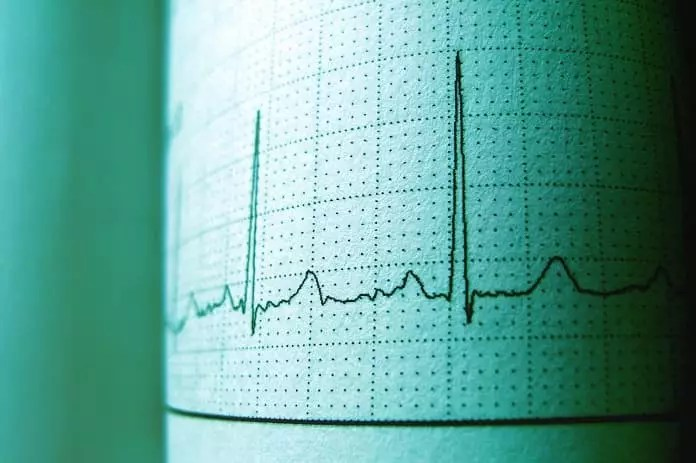 Can artificial intelligence accurately predict risk of heart disease