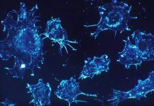 starving breast cancer cells