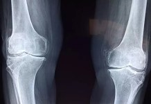 knee instability risk