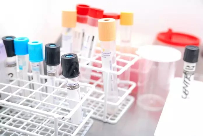 A new urine test for IBS - Medical News Bulletin | Health News and