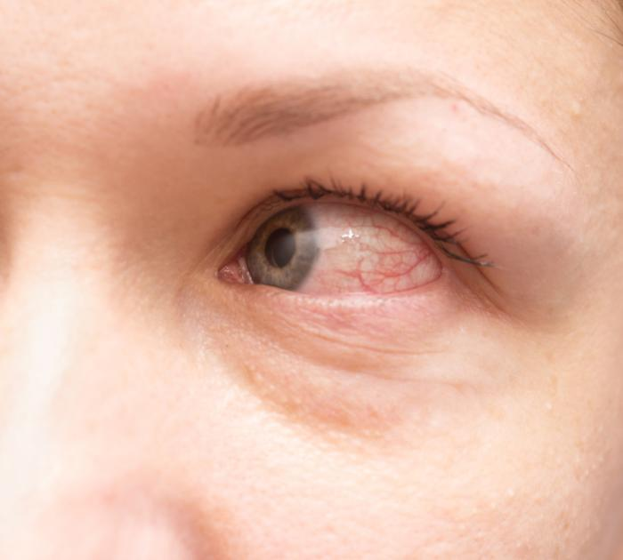 Red eye can be a symptom of allergic conjunctivitis
