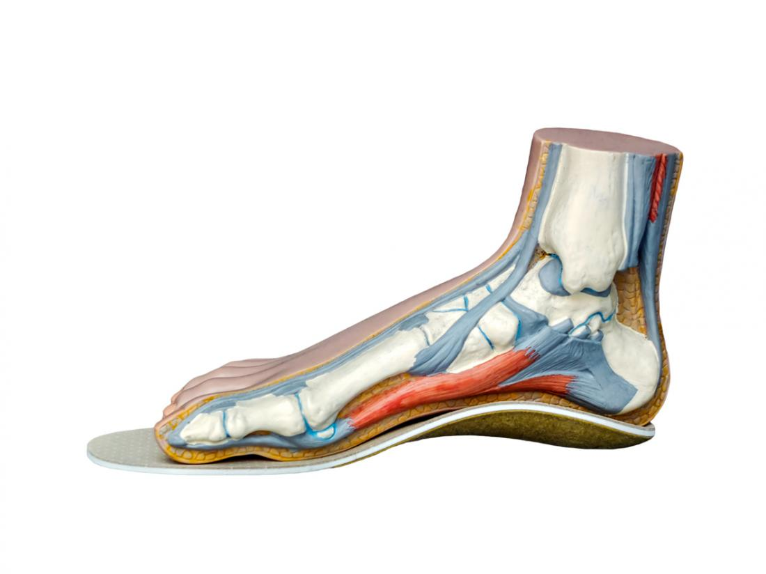 Wearing insoles can help support the foot and reduce pain.