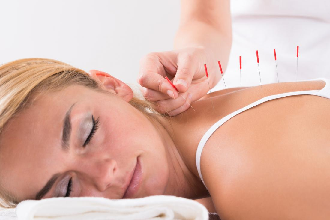 study shows why acupuncture
