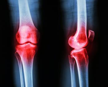 x ray of osteoarthritis