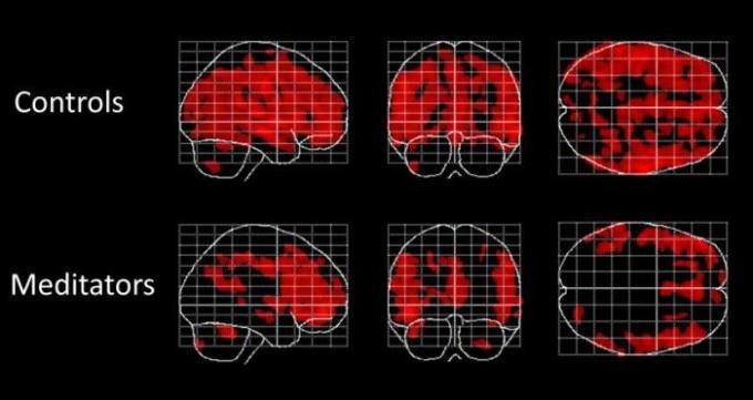 Effecten van meditatie op grijze massa