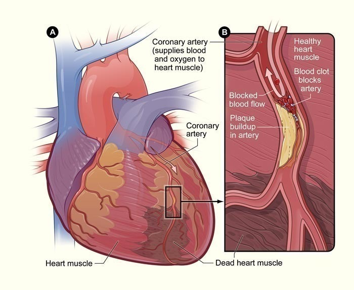 diagram of a heart bypass graft 2010 mazda 3 parts blockage symptoms