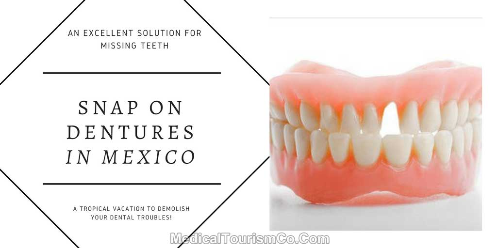 Snap On Dentures | Implant Supported Denture | Mexico