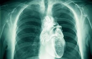french-cannabis-heart-disease