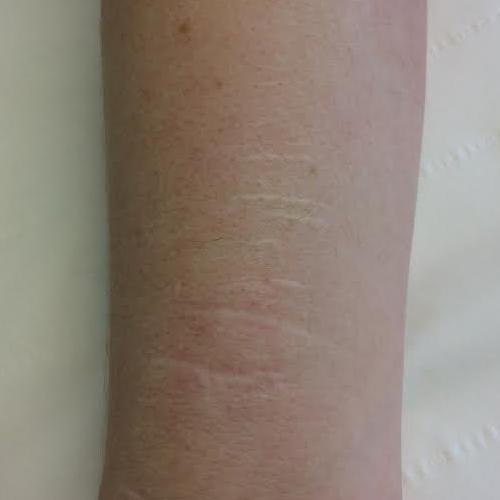 Deliberate Self Harm Scars  Medicare Cosmetics