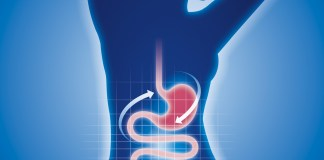 Indigestion, ballonnements