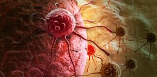 Le cancer : définition, traitements et effets
