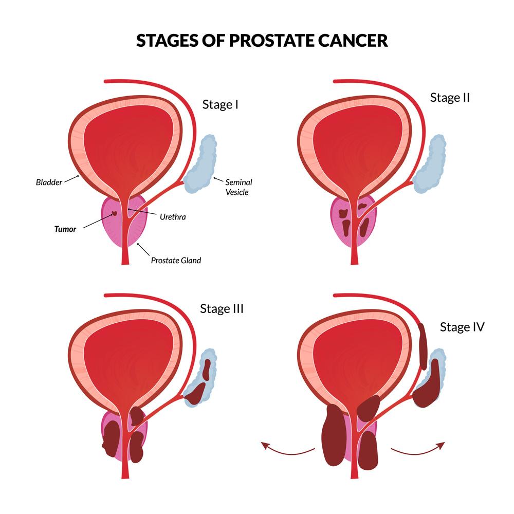 medium resolution of prostate cancer diagram