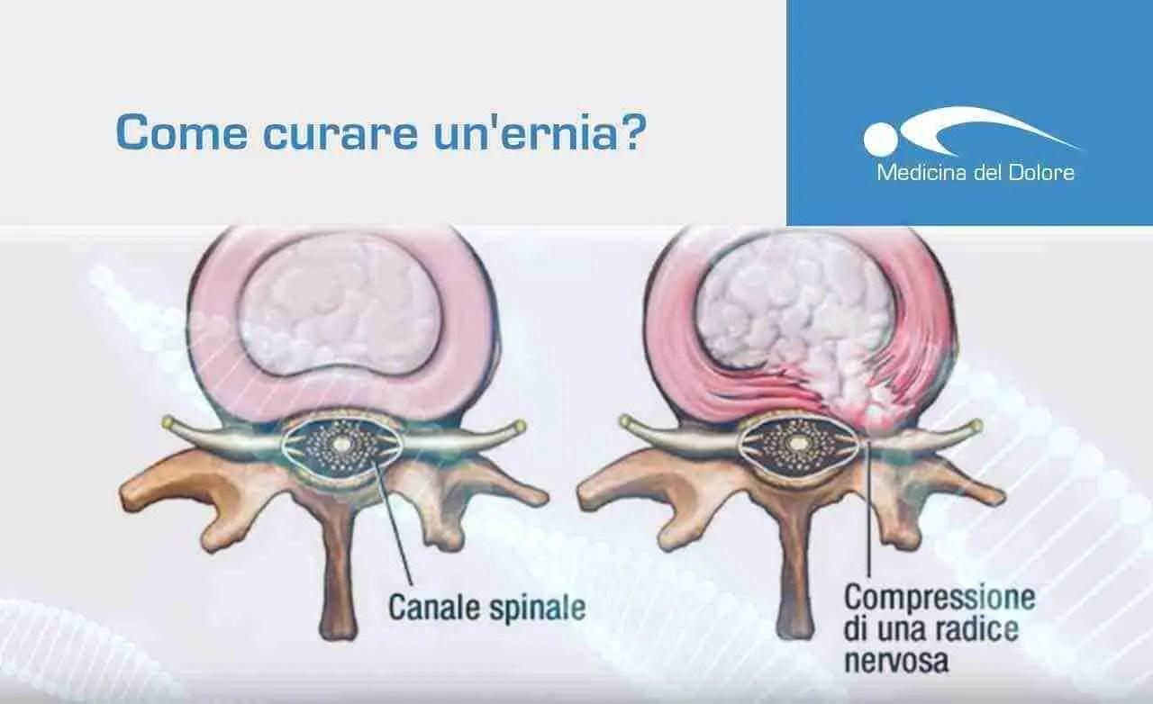 Ernia discale (ernia del disco): <br>diagnosi, terapia, chirurgia.