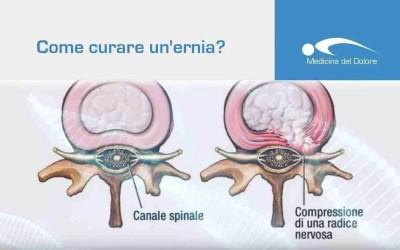 Ernia discale (ernia del disco): diagnosi, terapia, chirurgia.