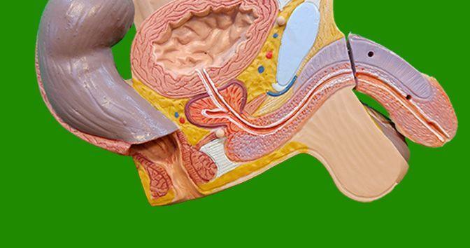 Cáncer de Próstata: todo lo que necesita saber acerca de él