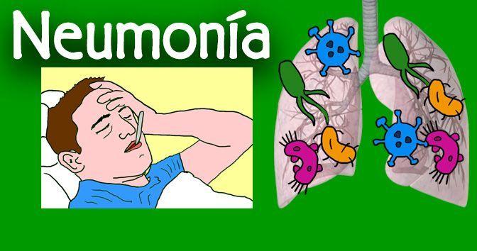Neumonía en la Medicinapedia