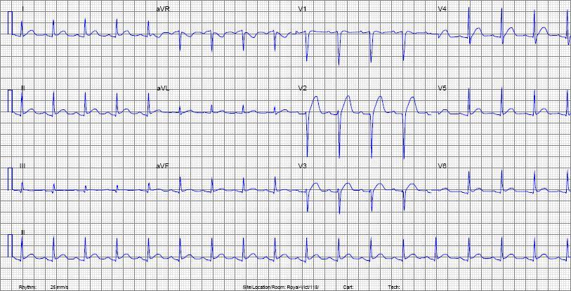 Sinus Ecg Abnormal Tachycardia