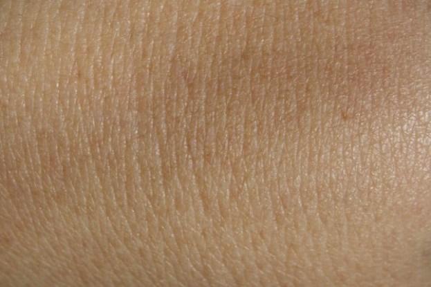 skin-600x400