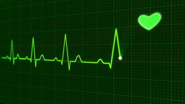 ekg-electrocardiogram