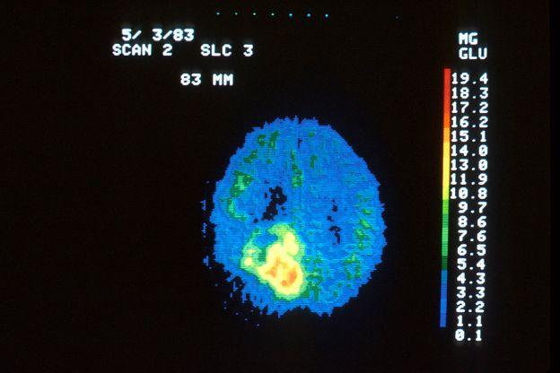 Pet_scan_of_brain_tumor