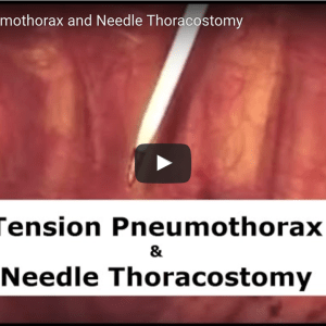Video Inside Look at Tension Pneumothorax & Needle Decompression