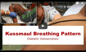 Video Kussmaul Breathing Pattern