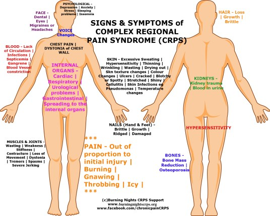 Illustration on the female human anatomy complex regional pain syndrome