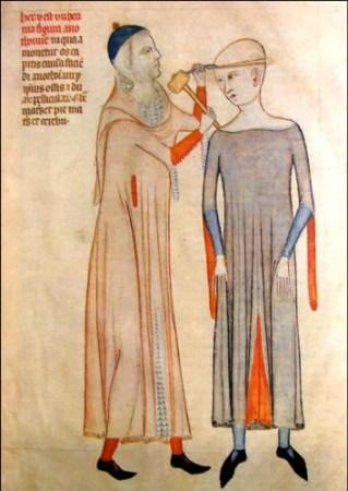 Guido da Vigevano, a 14th century Italian physician, depicting the practice of trepanning