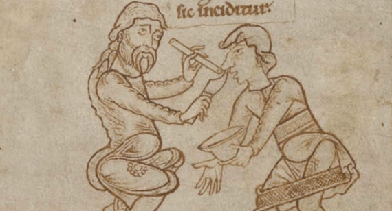 medieval-surgery