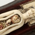 Abortion Medieval Style? Assaults on Pregnant Women in Later Medieval England