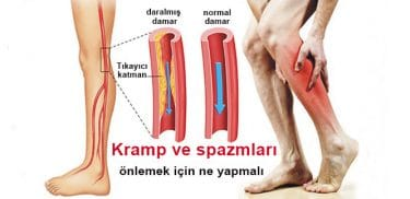 kramp kas spazmi 22 375x182 - Cramps (spasm what is Nov? What Are The Causes? Symptoms and treatment