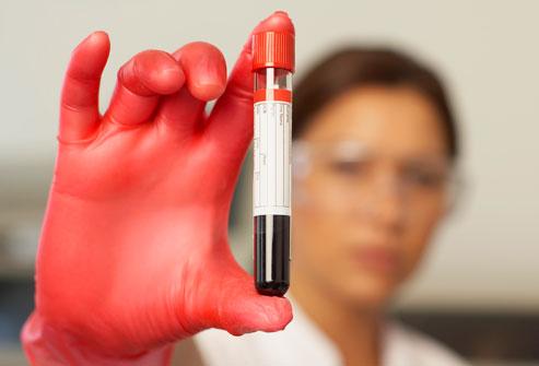 bloodtest-1497001479