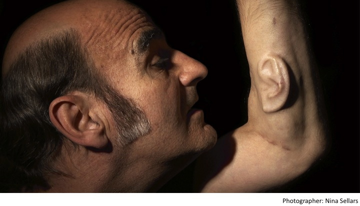Stelarc. Ear On Arm.