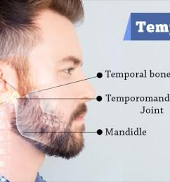 temporomandibular joint disorders causes symptoms diagnosis treatment [ 1920 x 500 Pixel ]