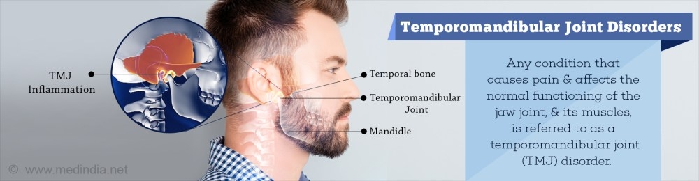medium resolution of temporomandibular joint disorders causes symptoms diagnosis treatment