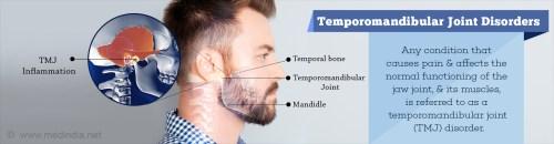 small resolution of temporomandibular joint disorders causes symptoms diagnosis treatment