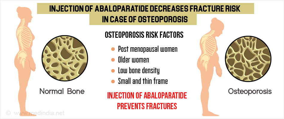 Image result for Abaloparatide