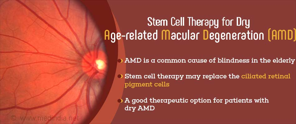 Stem Cells are a Potential Therapy for Age-related Macular Degeneration